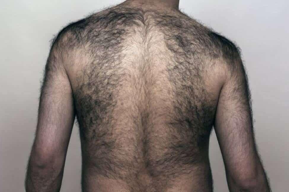 depilarsi la schiena