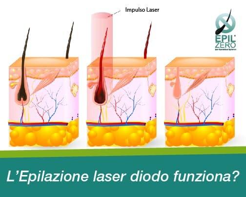 epilazione laser diodo funziona