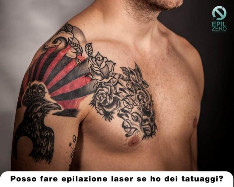 Posso fare epilazione laser se ho dei tatuaggi