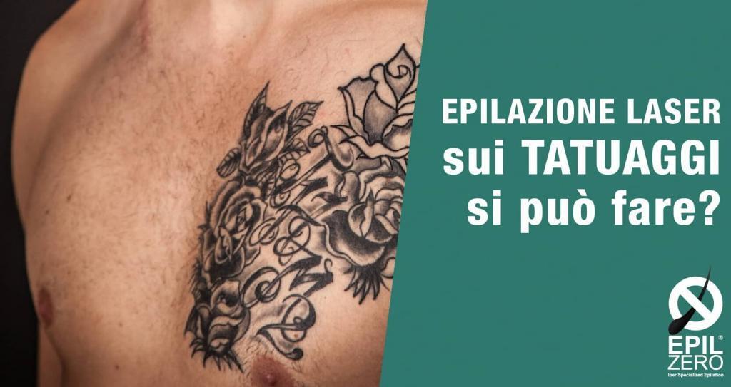 epilazione laser su tatuaggi