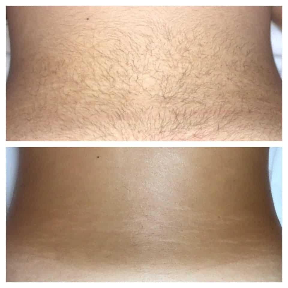 epilazione laser epilzero dermoepilazione permanente radicale