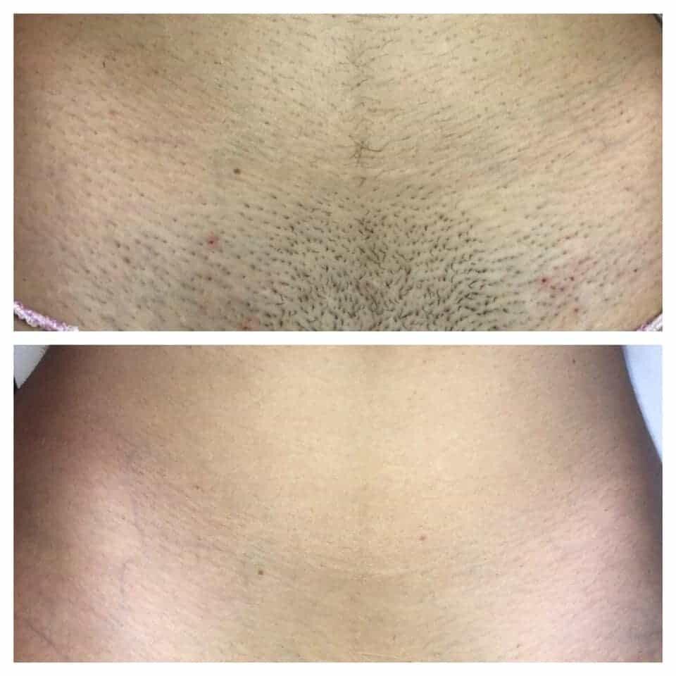 epilazione laser epilzero dermoepilazione permanente radicale (13)
