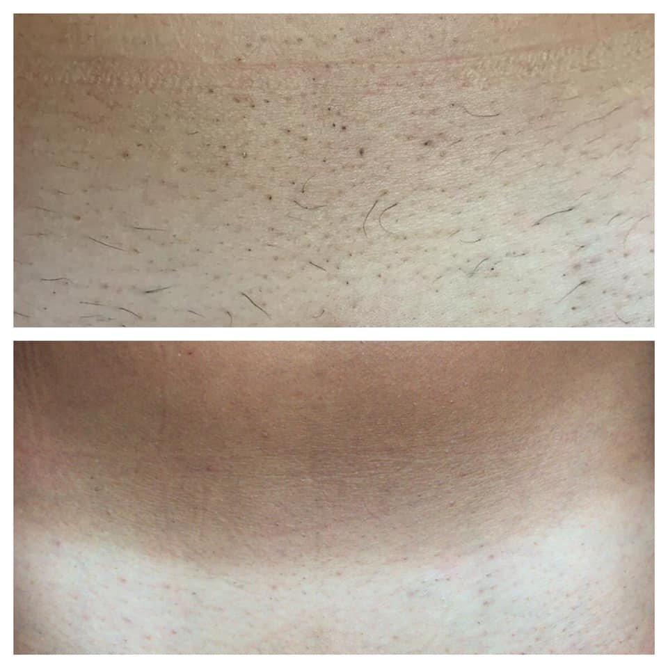 epilazione laser epilzero dermoepilazione permanente radicale (16)