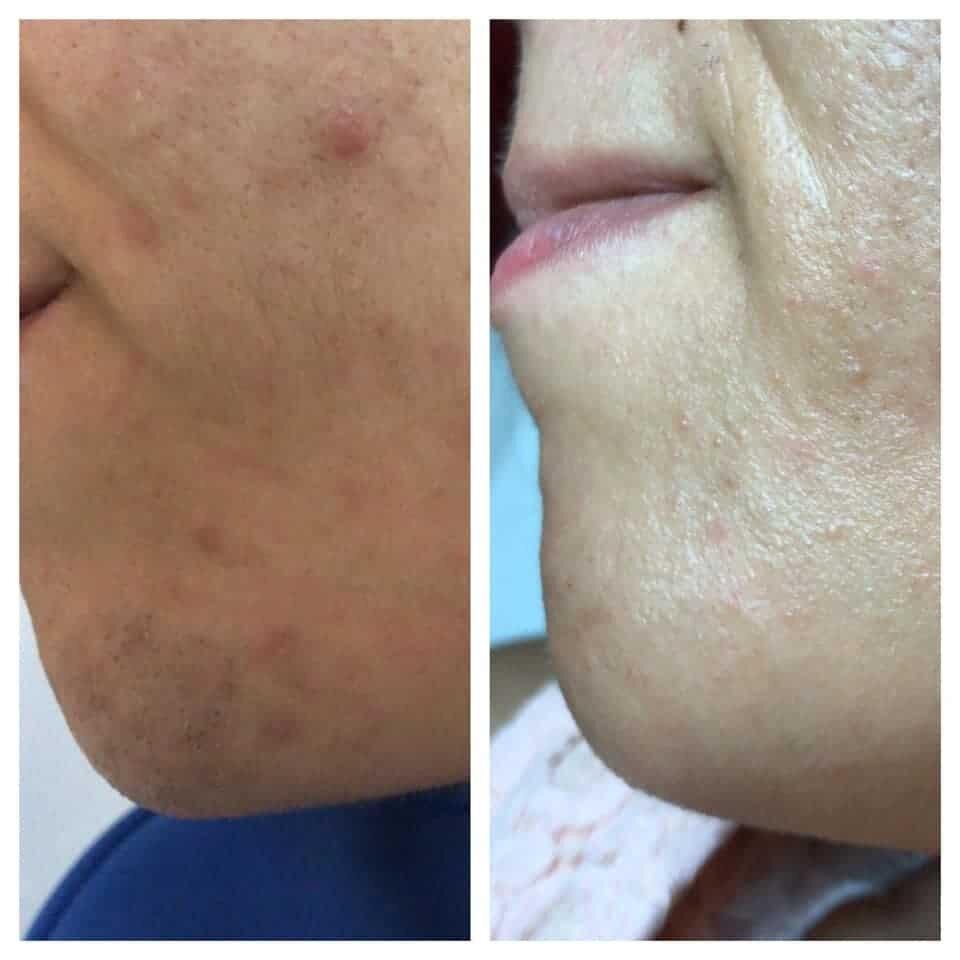 epilazione laser epilzero dermoepilazione permanente radicale (18)