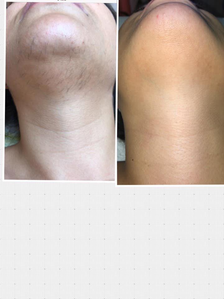 epilazione laser epilzero dermoepilazione permanente radicale (19)