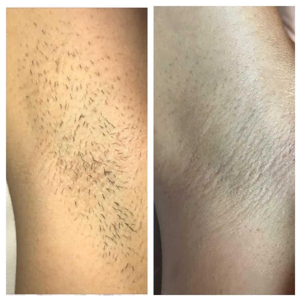 epilazione laser epilzero dermoepilazione permanente radicale (2)
