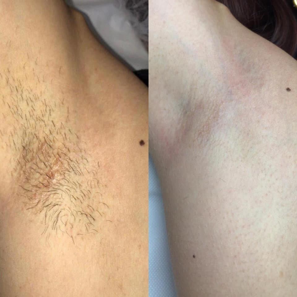 epilazione laser epilzero dermoepilazione permanente radicale (3)