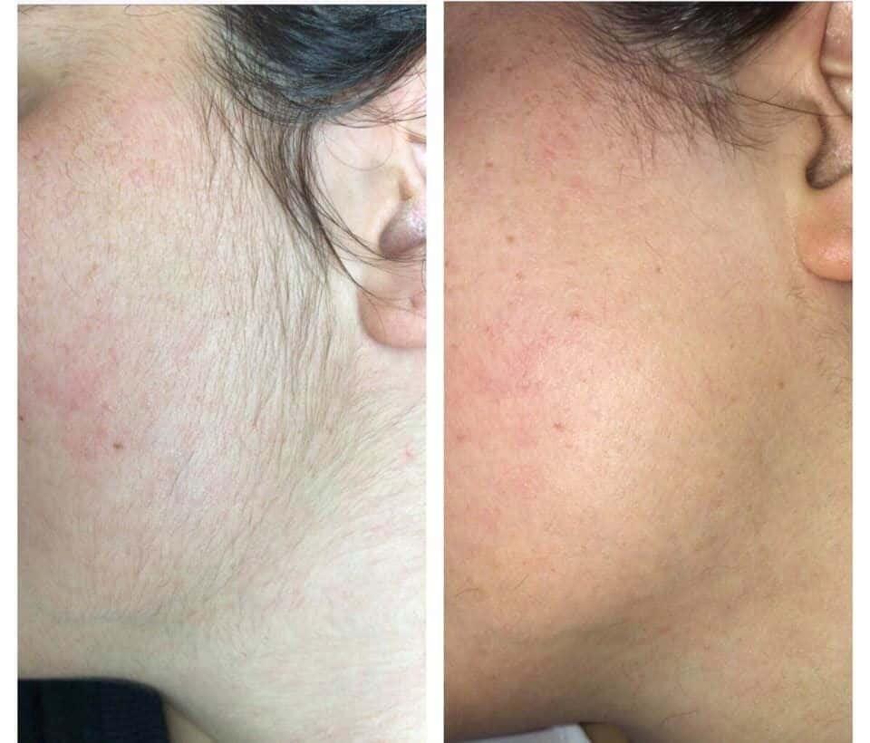 epilazione laser epilzero dermoepilazione permanente radicale (4)