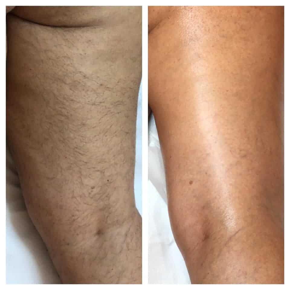 epilazione laser epilzero dermoepilazione permanente radicale (5)