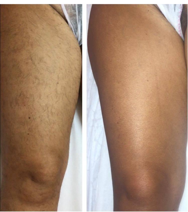 epilazione laser epilzero dermoepilazione permanente radicale (6)