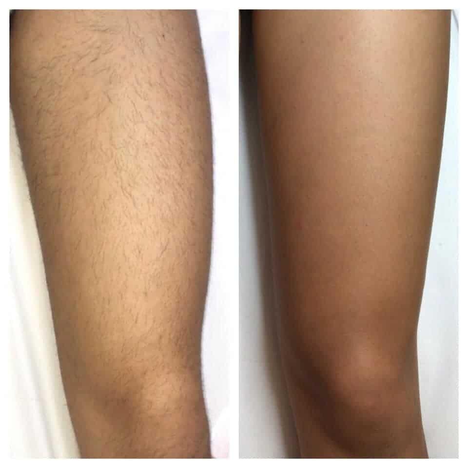 epilazione laser epilzero dermoepilazione permanente radicale (7)