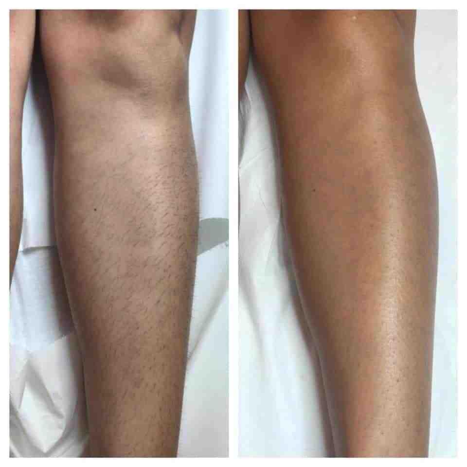 epilazione laser epilzero dermoepilazione permanente radicale (8)