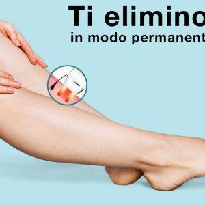 epilzero bisbetica mentana roma epilazione laser e dermoepilazione